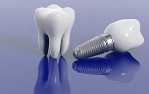 Is a Dental Implant Treatment Better Than a Bridge?